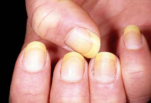 Móng tay bất thường là dấu hiệu bệnh nặng - 3