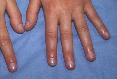 Móng tay bất thường là dấu hiệu bệnh nặng - 4