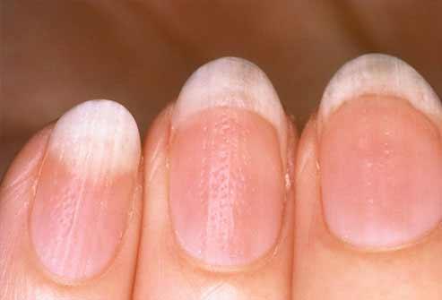 Móng tay bất thường là dấu hiệu bệnh nặng - 5