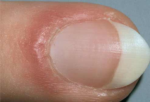 Móng tay bất thường là dấu hiệu bệnh nặng - 7