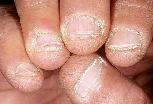 Móng tay bất thường là dấu hiệu bệnh nặng - 9