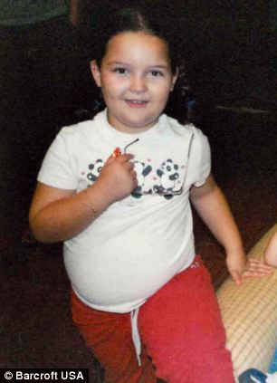 Bé gái 14 tuổi cắt dạ dày để giảm béo - 2