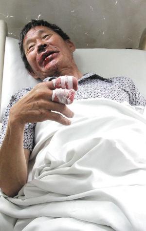 TQ: Cụt tay, khâu miệng vì thuốc lá phát nổ - 1