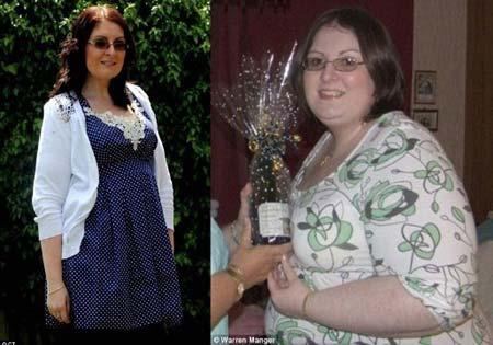 Suýt mất mạng do cắt dạ dày giảm béo - 1