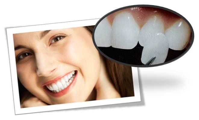 Răng sứ thẩm mỹ với Veneer-Ultraneer siêu mỏng
