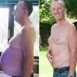 Sức khỏe đời sống - Mang khối u nặng gần 22 kg mà ngỡ bụng bia