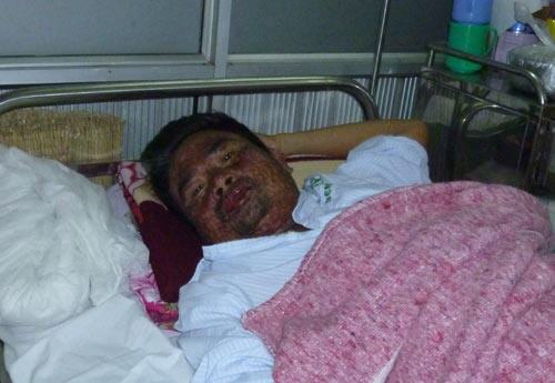 Suýt chết vì thuốc Đông y dởm - 2