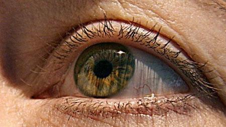 Kinh hoàng giun dài 13 cm sống trong mắt - 1