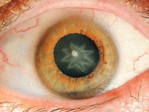 Sau khi bị đấm, mắt xuất hiện hình ngôi sao - 1