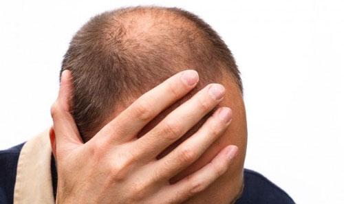 Nam giới hói đầu có nguy cơ mắc bệnh tim cao - 1