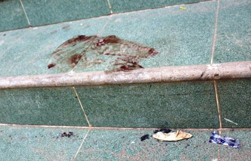 Nã súng cướp ô tô: Xác định danh tính sát thủ - 2