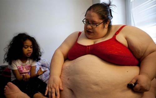 10 ảnh độc của bà mẹ 453kg - 5