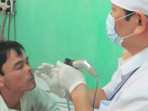 Con vắt béo núc ních trong mũi bệnh nhân - 2