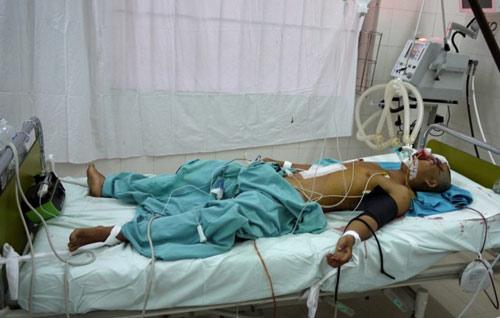 Cứu sống bệnh nhân bị vỡ sọ, dập gan lách - 1