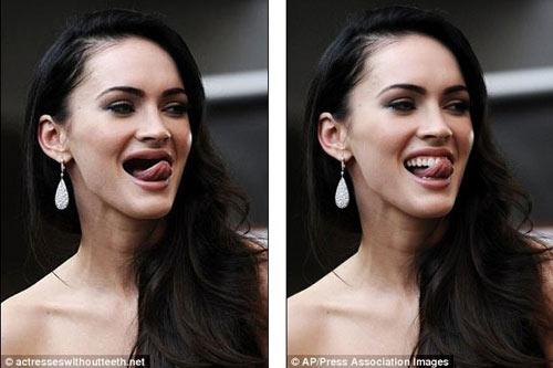 Chết cười xem siêu sao bị... móm răng - 2