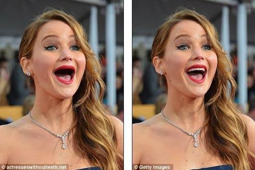 Chết cười xem siêu sao bị... móm răng - 5