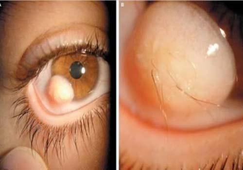 """Những bệnh về mắt kinh dị """"nhất quả đất"""" - 1"""