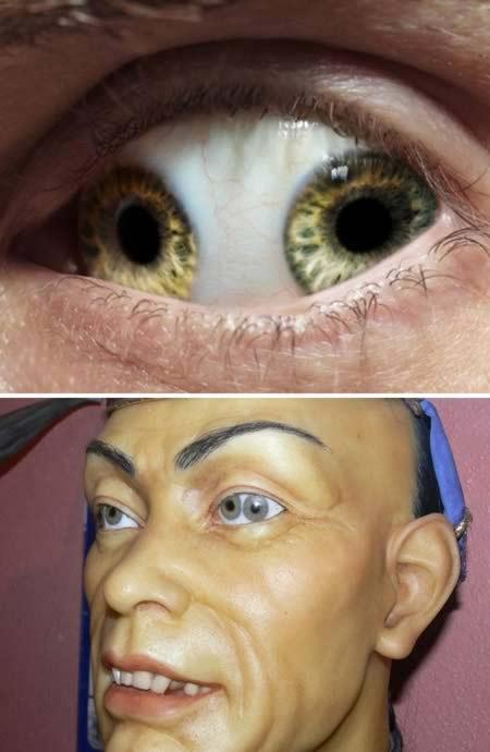 """Những bệnh về mắt kinh dị """"nhất quả đất"""" - 2"""