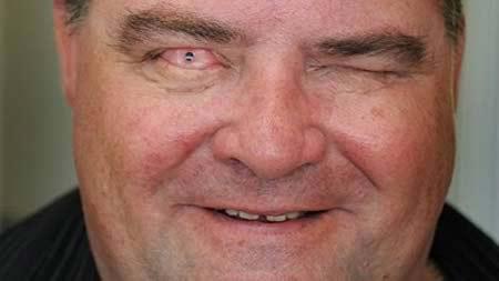 """Những bệnh về mắt kinh dị """"nhất quả đất"""" - 5"""