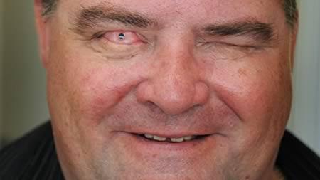 """Những con mắt kinh dị """"nhất quả đất"""" - 6"""