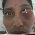 """Sức khỏe đời sống - Những bệnh về mắt kinh dị """"nhất quả đất"""""""