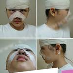 Làm đẹp - Thiếu nữ Hàn mặt sưng húp sau dao kéo