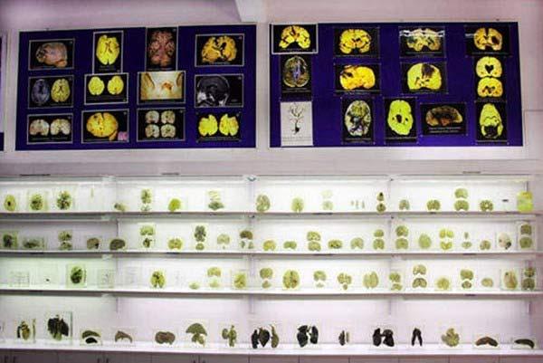 Rùng rợn bảo tàng Não ở Ấn độ - 2