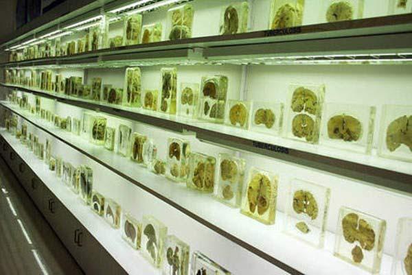 Rùng rợn bảo tàng Não ở Ấn độ - 3