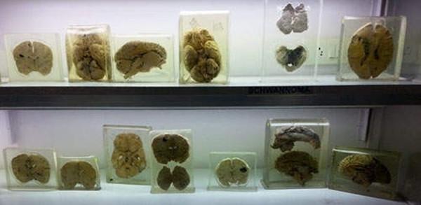 Rùng rợn bảo tàng Não ở Ấn độ - 5