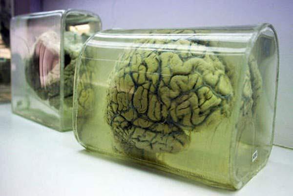 Rùng rợn bảo tàng Não ở Ấn độ - 6