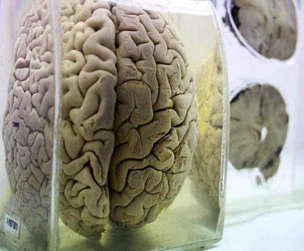 Rùng rợn bảo tàng Não ở Ấn độ - 7