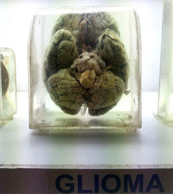 Rùng rợn bảo tàng Não ở Ấn độ - 8