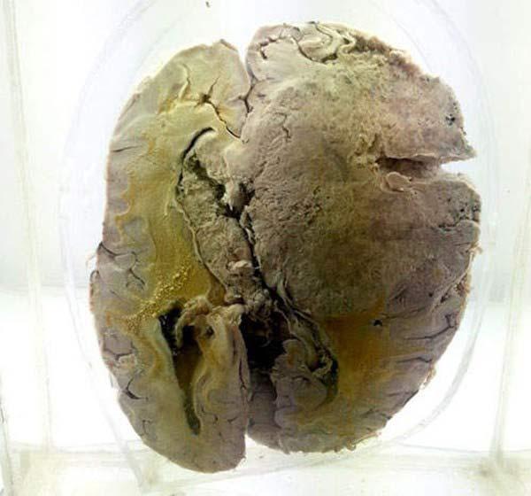 Rùng rợn bảo tàng Não ở Ấn độ - 9