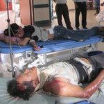 Tin tức trong ngày - TNGT thảm khốc ở Huế qua lời kể nạn nhân