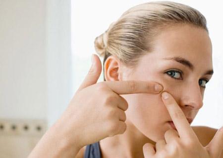 Các bước chăm sóc da mụn hiệu quả - 2
