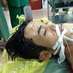 An ninh Xã hội - Tham gia hỗn chiến, 1 người bị đâm xuyên đầu