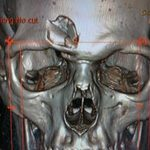 Thể thao - Chấn thương sởn gai ốc ở môn hockey