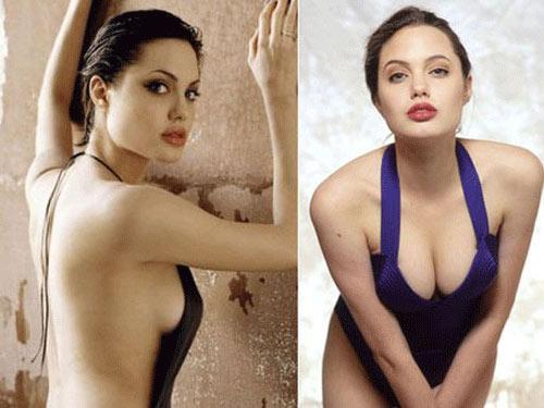 Jolie cắt ngực: Bác sĩ Việt Nam nói gì? - 1