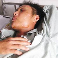 Khi giang hồ đất Mỏ dọa ốp mìn nhà quan tỉnh