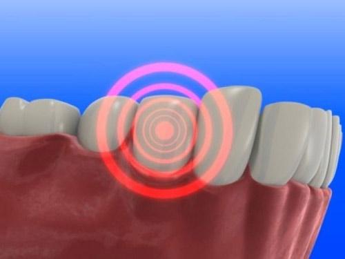 10 bệnh dễ mắc nếu bạn lười đánh răng - 1