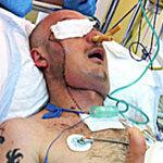 Sức khỏe đời sống - Người đầu tiên được cứu sống nhờ ghép mặt