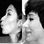 """Làm đẹp - Những chiếc mũi được """"phù phép"""" của sao"""