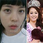 Thời trang - Tân hoa hậu Hàn lại bị mổ xẻ nhan sắc