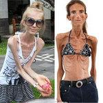 Thời trang - Thiếu nữ biến thành bộ xương khô vì mốt