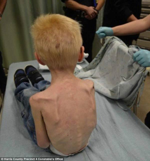 Cậu bé 5 tuổi bị bố mẹ bỏ đói dơ xương - 2
