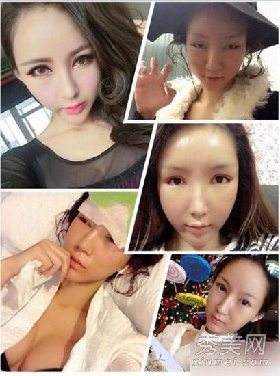 Fan vỡ mộng vì mặt mộc của mỹ nữ Trung Quốc - 5