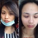Thời trang - Diễm Hương công khai vết tích bị hành hung
