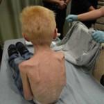 Phi thường - kỳ quặc - Cậu bé 5 tuổi bị bố mẹ bỏ đói dơ xương