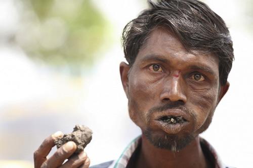 Ấn Độ: Dị nhân ngốn 3 kg gạch đá mỗi ngày - 5