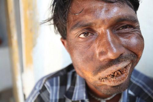 Ấn Độ: Dị nhân ngốn 3 kg gạch đá mỗi ngày - 3